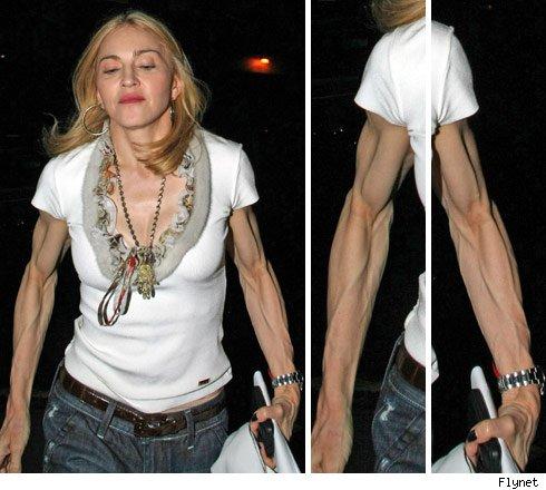 Madonna necesita alimentarse mejor