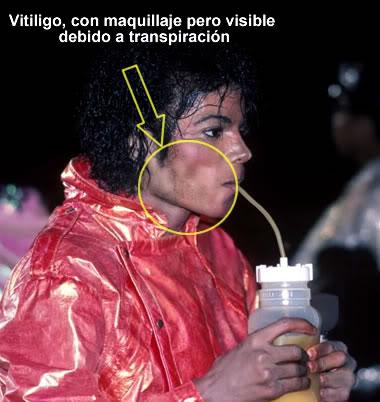 El vitiligo comenzó a avanzar desde la mejilla