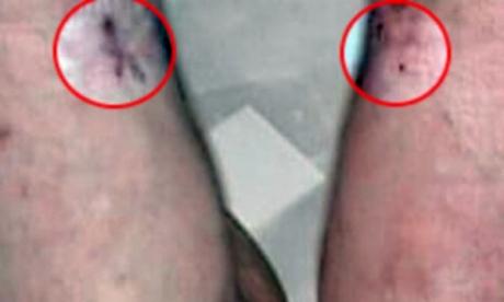 Michael Jackson se inyectaba medicamentos en las piernas